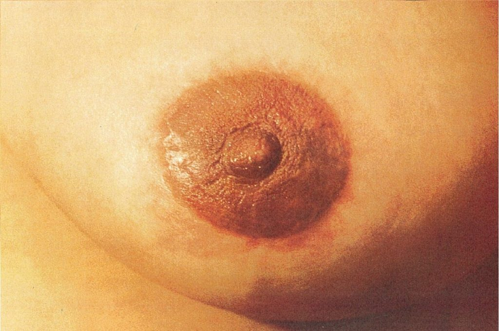 Areola and Scar Camoflage After