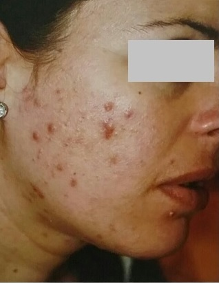 Before: Acne Woman Left Side Showing Her Acne