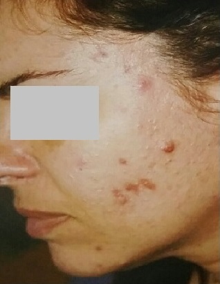 Before Acne woman Left Side showing her acne