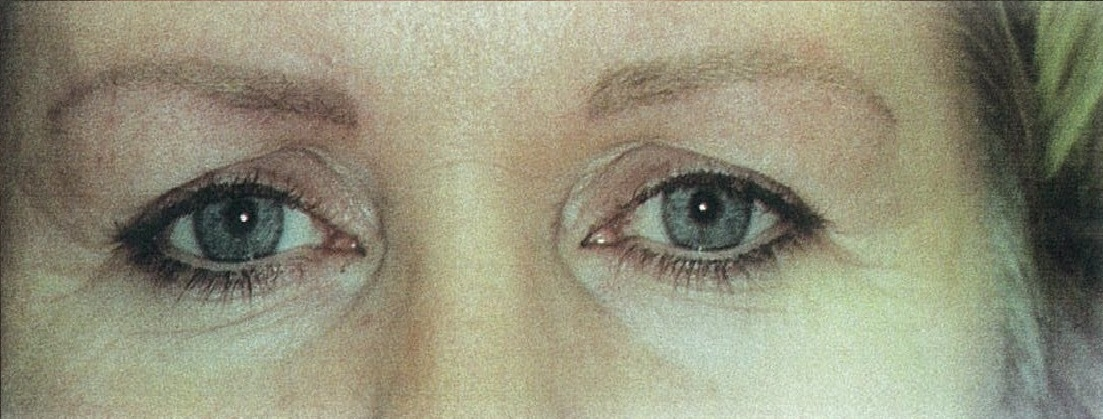 Cosmetic Tattoo Eyebrow After