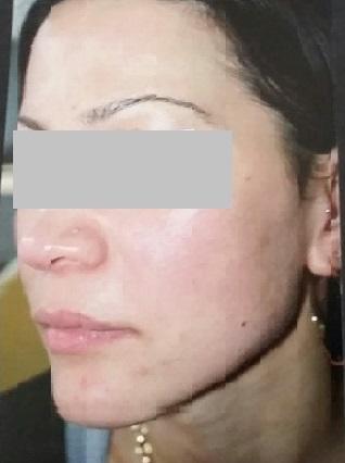 Female Open Pores After Left Side