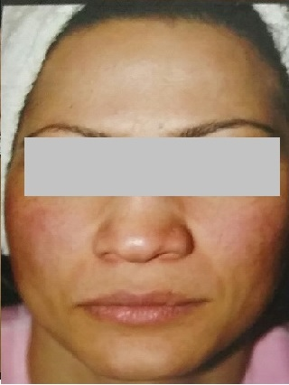 Female Open Pores Front Face