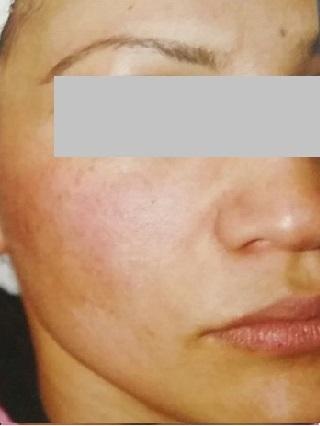 Female Open Pores Right Face
