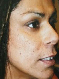 Female Open Pores3