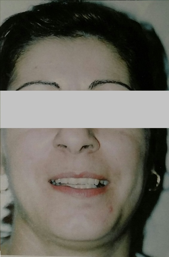 Female Post Traumatic Pigmentation After