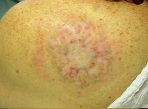 Laser Tattoo Removal After