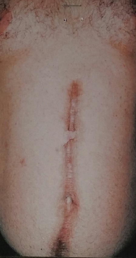 Male Post Traumatic Scarring During