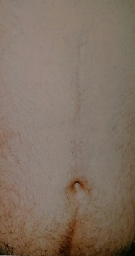 Male Post Traumatic Scarring After