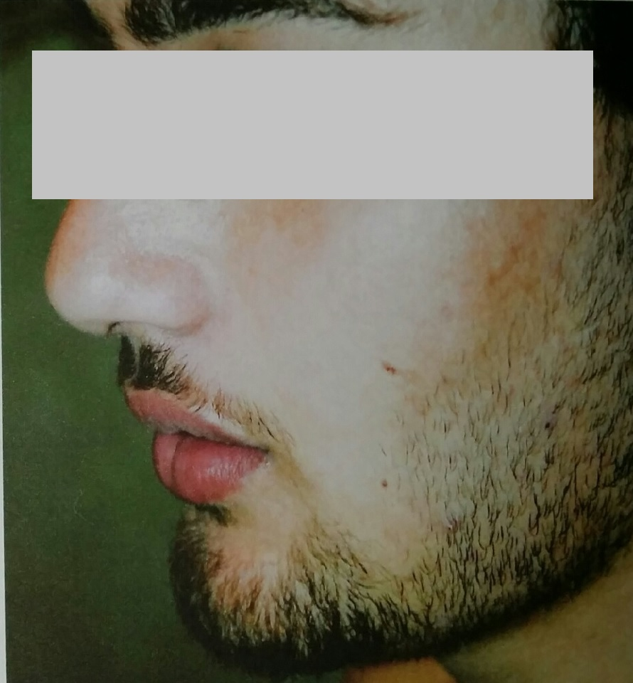 Male Teenage Congested Acne After