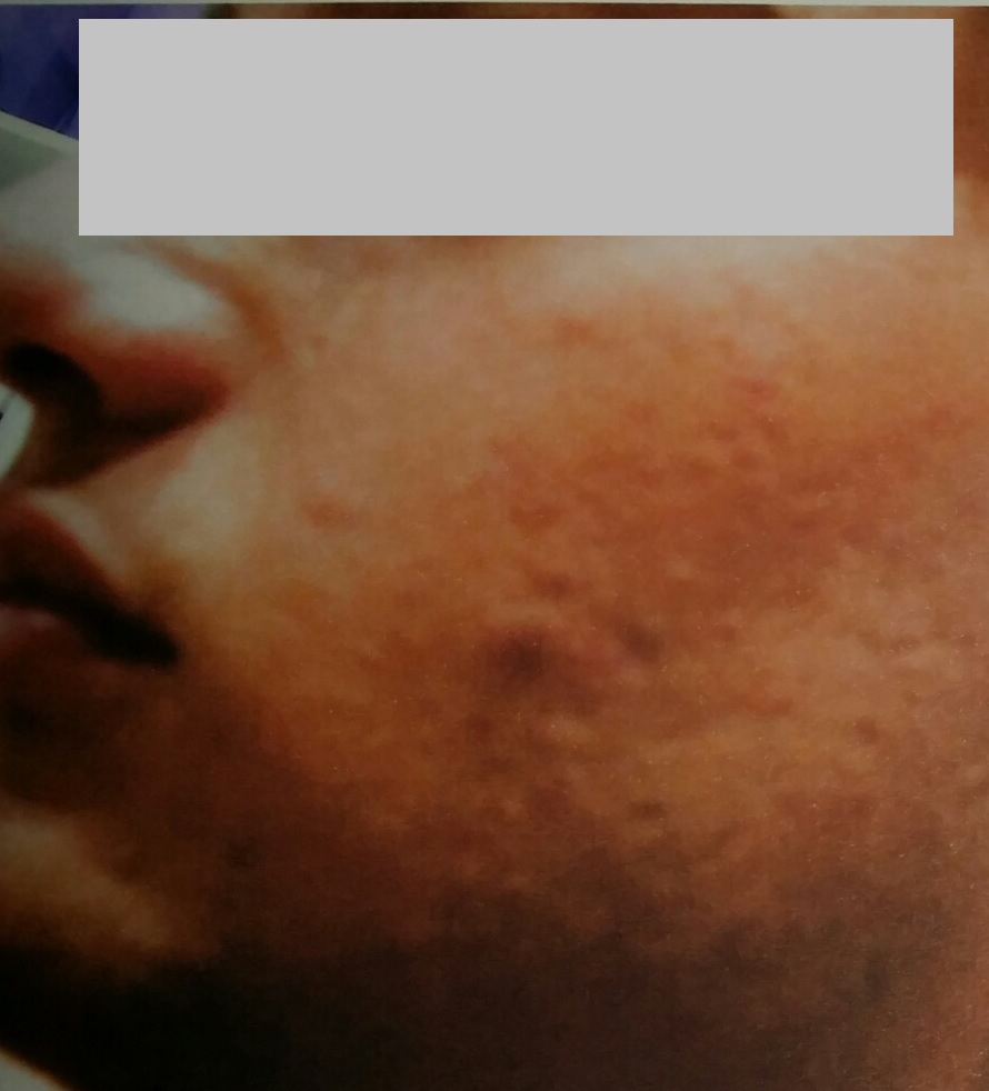 Male Teenage Congested Acne Before
