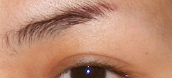 Permanent Eyebrow Before